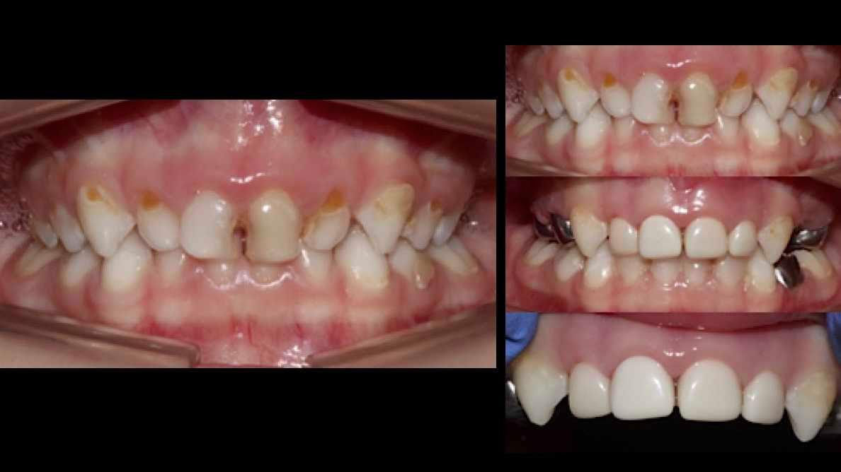 caries-severa-de-primera-infancia-en-odontopediatria