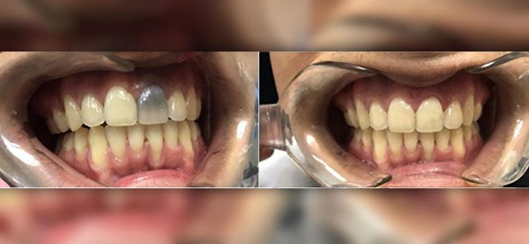blanqueamiento-de-dientes-no-vitales
