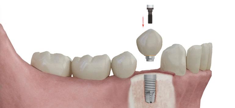 corona-sobre-implantes