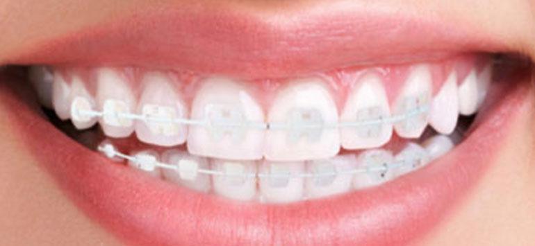 ortodoncia-de-zafiro