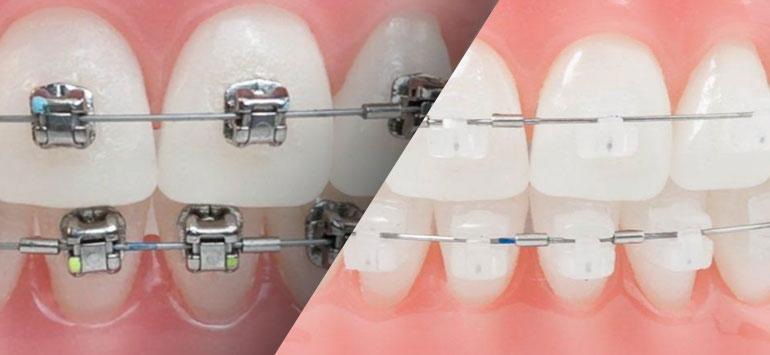 ortodoncia-con-brackets-autoligados
