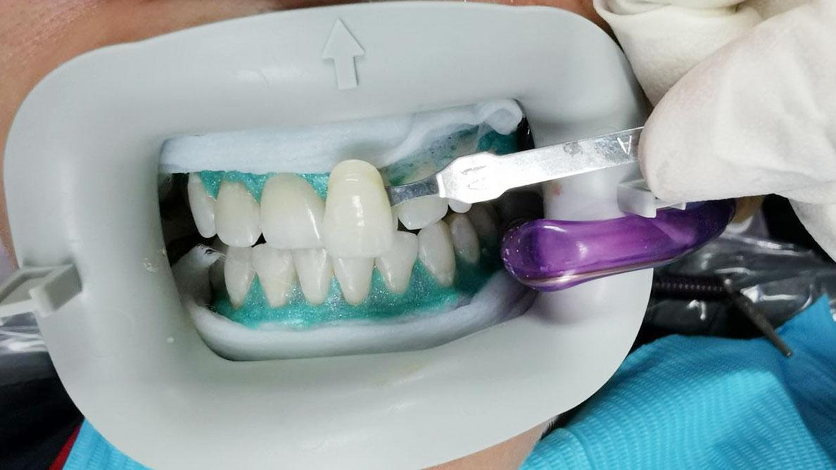 ortodoncia-y-blanqueamiento-la-guinda-del-pastel