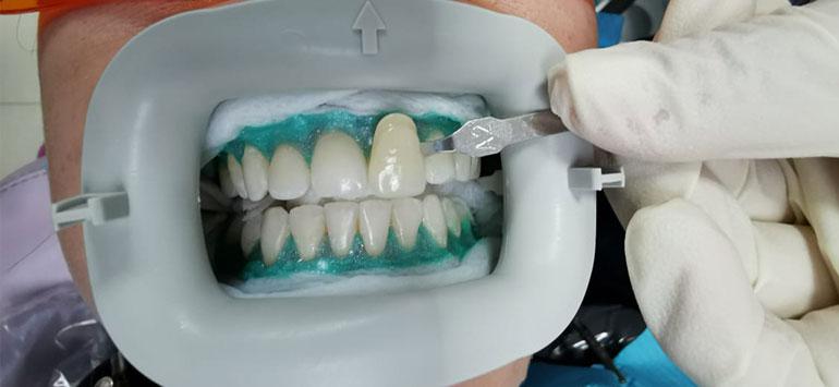 blanqueamiento-dental-sin-lampara-