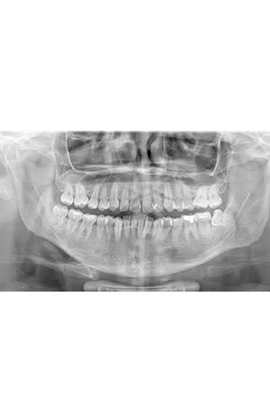 20-radiografias-panoramicas